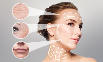 Facial problem areas addressed by fillers or botox